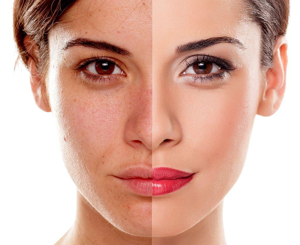 BB GLOW, un tratamiento con el que olvidarse del maquillaje diario
